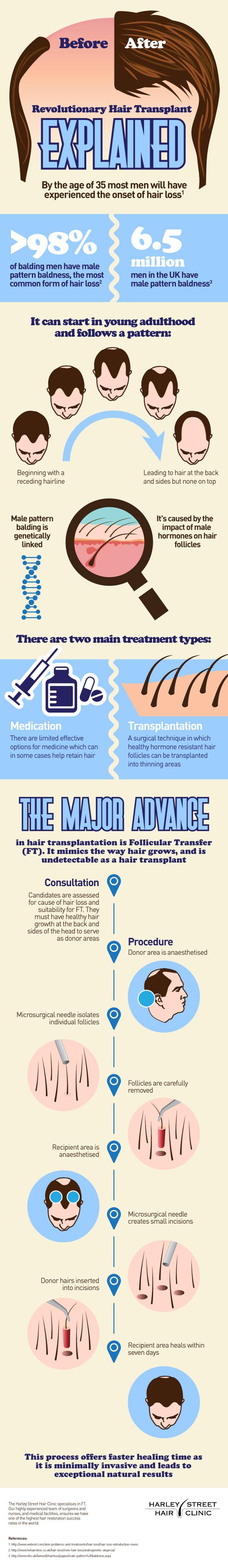 Revolutionary-Hair-Transplant-IG-13032014a